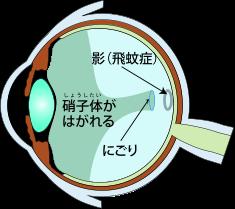 美容と健康: 目の病い